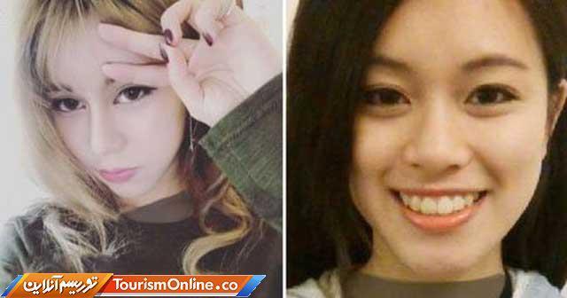 دختری که بخاطر نامزدش بیش از 30 جراحی زیبایی انجام داده است!، تصاویر