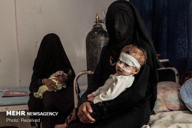 قربانی شدن 5700 کودک یمنی از آغاز تجاوز ائتلاف سعودی