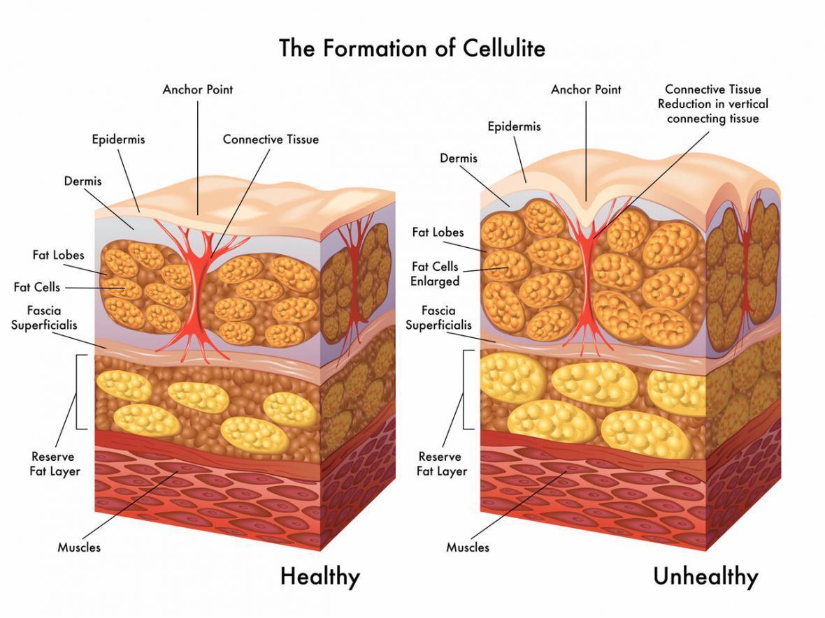 آیا سلولیت با کرم و روغن از بین می رود؟