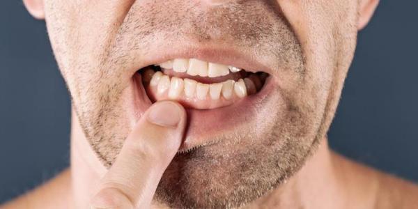 خارش دندان؛ از دلایل تا درمان
